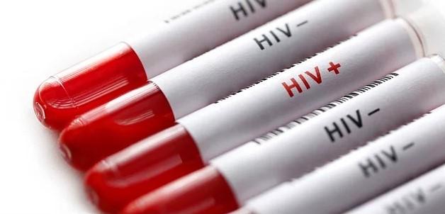 Geçen yıl dünyada 36 milyon kişi HIV virüsüne yakalandı