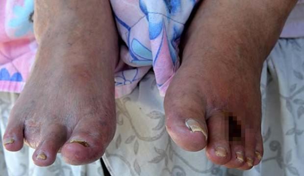 Acıdan parmaklarının kesilmesini istedi