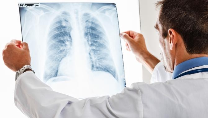 Göğüs röntgeninden hastalık teşhisi yapay zekayla yapılacak