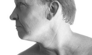 Gırtlak kanseri tedavi ve korunma yöntemleri