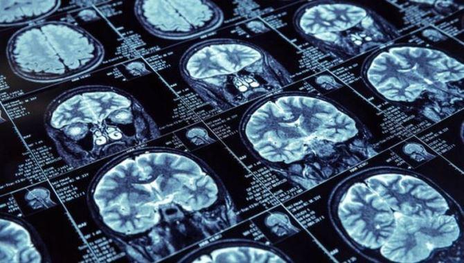Beyin pili ile parkinsonda koku duyusunun geri getirildiği saptandı