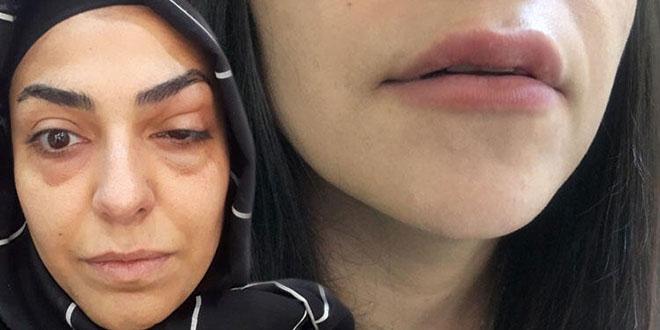 Göz çevresine botoks yaptırdı, gözünden oluyordu