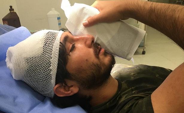 Aile hekimi darbedildi Haluk Levent sosyal medyada isyan etti: 'Doktorsuz kalabiliriz'