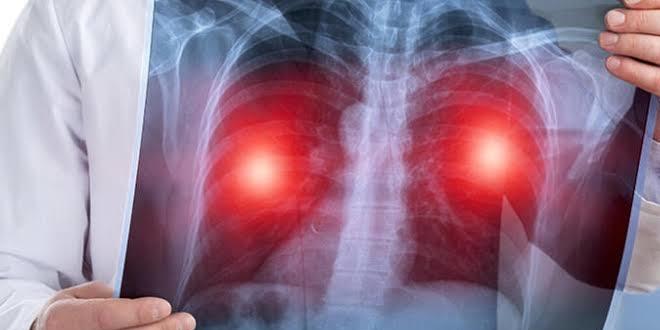 Hava kirliliği akciğer kanseri riskini arttırıyor