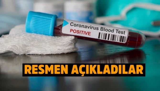 Rusya'dan önemli açıklama: Korona virüs ilacını geliştirdik