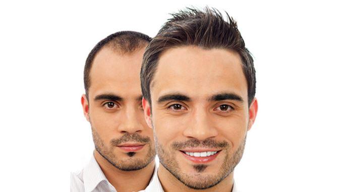 Saç Ekimi Hakkında Merak Edilenler