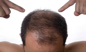 Saçlar neden dökülür?