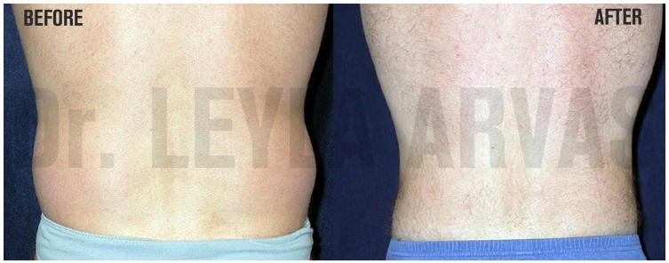 Vücut şekillendirmede liposuction farkı