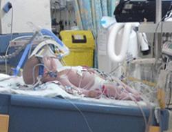 16 haftalık bebek, Dondurularak hayata döndü