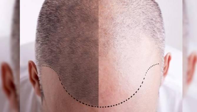 En Doğal Sonuç Veren Saç Ekimi Yöntemleri