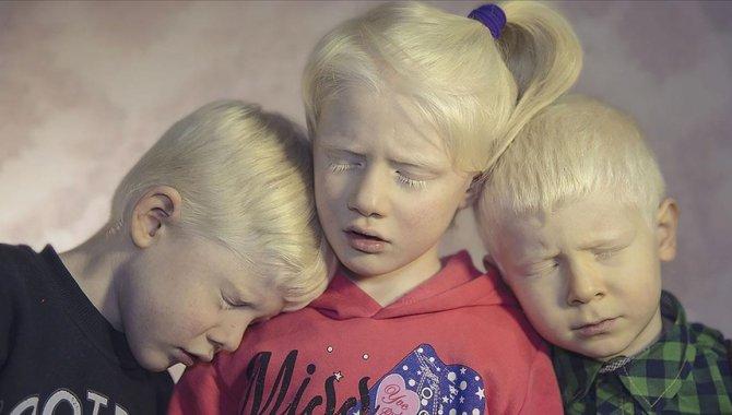 Albinizmli bireyler güneşten koruyucu kremleri için devletten destek bekliyor
