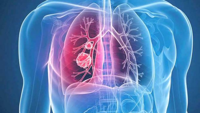 Verem Hastalığı Nedir, Hastalıktan Korunma ve Tedavi Yolları Nelerdir