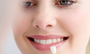 Sağlıklı dişler için 8 öneri