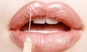 Botoks vücuttan sonra dişlere de uygulanıyor...