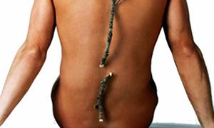 Osteoporoz hayatı olumsuz etkiliyor