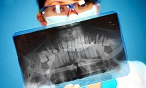 Diş röntgeninde tümör riski!