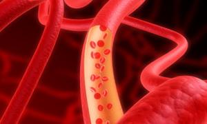 Damar tıkanıklarında trombolitik tedavi