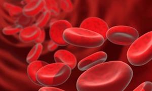 Ciddi bir kanama hastalığı: Hemofili