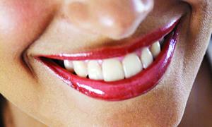 Bayramda dişlerinize dikkat!