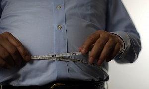 """""""Obezite bir kültür hastalığı"""""""