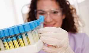 Röntgen ve Laboratuar Çalışanlarına Riskli Birim Katsayısı