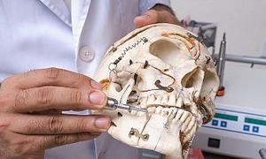 1800 yıllık kafatasında ameliyat izi