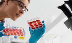 İstanbul'a yeni kök hücre nakil merkezi