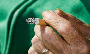 Günde 3 tabaka tütün içen tiryakinin damarları tıkandı