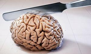 Beyin yedekleniyor