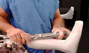 Danıştay Protez ve Ortez Sorununu da Çözmeli