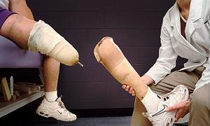 Gaziler üzerinden protez vurgunu