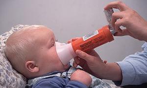 Tedavi edilmeyen alerji, astıma neden olabilir
