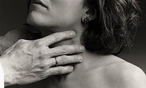 Türkiye'de tiroit kanseri neden patladı?