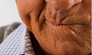Sigara cildin yaşlanmasını hızlandırıyor