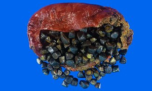 Safra kesesi taşlarında en iyi çözüm ameliyat