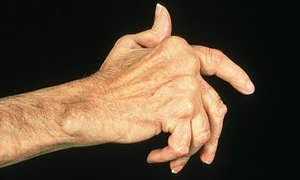 Eklemlerde ağrı ve şişliğe dikkat