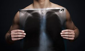 Ölümlerin yüzde 20'si akciğer hastalıklarından kaynaklanıyor