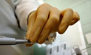 Kayseri'de bir hastaya tularemi teşhisi konuldu