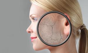 Soğuk havada cild koruması