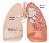 Akciğer kanserinin şifresi çözülüyor