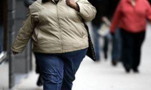 """Akdağ: """"Obez değil şişko diyelim"""""""