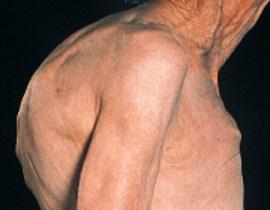 Bursalıların yüzde 25,68`i osteoporoz hastası