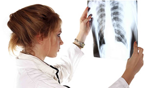 'Avrupa'da ilaca dirençli tüberküloz hızla yayılıyor'
