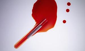 Dışkıda kan ve aşırı zayıflama kanser habercisi olabilir