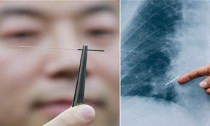 Başkanın akciğerinden akupunktur iğnesi çıktı