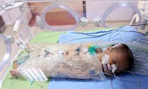 'Öldü' diye anne karnından alınan bebek, 109 günde yeniden hayata tutundu