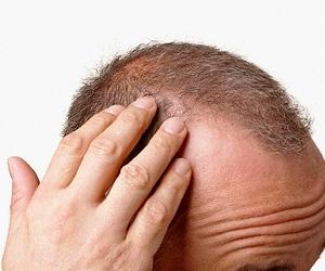 """""""Saç ektireyim derken 'çim adam'a dönmeyin"""""""