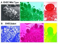 Tıp dünyası, EHEC bakterisine karşı hala çaresiz