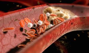 Tıkalı damarlar kangrene, felce, kalp krizine yol açıyor