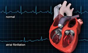 Kalp krizlerine karşı 'uydudan anjiyo' dönemi